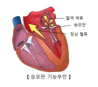 혈액역류 승포판 정상혈류의 위치 및 승모판 기능부전의 예시