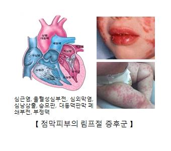 심근염 울혈성심부전 심외막염 심낭삼출 승모판 대동맥판막 예쇄부전 부정맥을 나타낸 이미지와 점막비부의 림프절 증후군을 예시한 유아의 사진