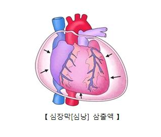 심장막(심낭) 삼축액의 예시