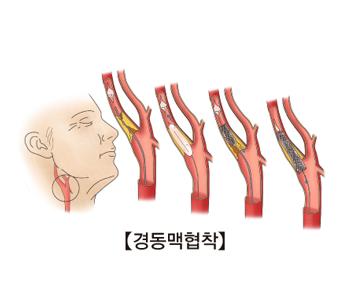 목부위 경동맥협착의 예시
