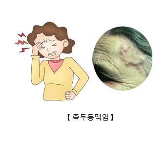 두통을 느끼는 여성및 실제 측두동맥염이 발생한 예시