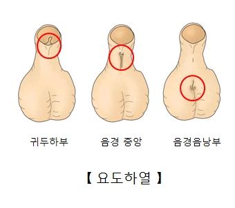 귀두하부 음경중앙 음경음낭부에 나타난 요도하열의 예시
