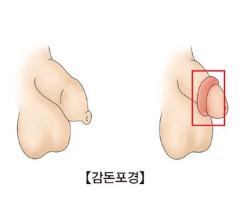 감돈포경의 예시