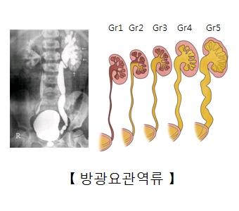 방광요관역류 x-ray사진 및 다섯가지 크기의 방광요관역류 예시