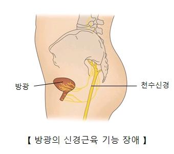 방광 및 천수신경의 위치와 방광의 신경근육 기능 장애의 예시