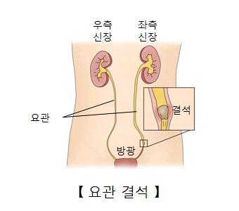 우측신장 좌측신장 요관 방광의 위치및 요관결석의 예시