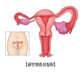 여성의 질속 골반연증성질환의 예시