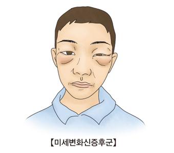 눈 주변에 미세변화신증후군이 발생한 예시