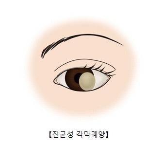 진균성 각막궤양이 발병하여 각막혼탁 상태가 된 눈 사진예시