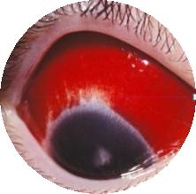 실제 충혈된 눈의 모습