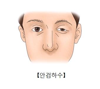 오른쪽 눈은 정상인데 왼쪽 눈의 윗눈꺼플이 아래로 처진 남성의 모습