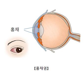 홍채의위치와 홍채염이 발병된 눈의 사진예시