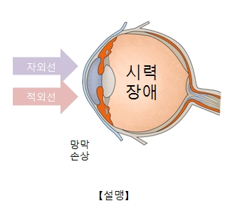 자외선과적외선으로 인해 망막이 손상되어 시력장애(설맹)가 일으킨 사진예시