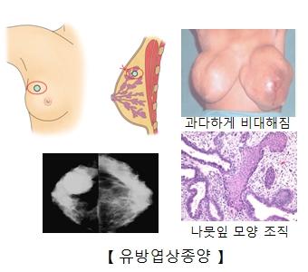 유방엽상종양이 발병하여 과다하게 비대해진 여성의 유방사진과 유방찰영술을통해본 사진및 나뭇잎모양의 조직세포 사진 예시