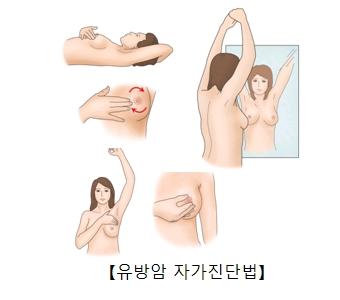 유방암 자가진단법 그림 예시