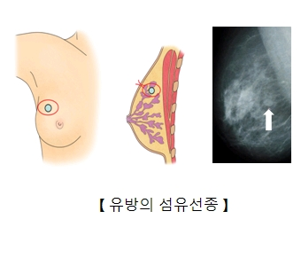 유방의 섬유선종 그림예시및 유방찰영술을 통해본 사진 예시