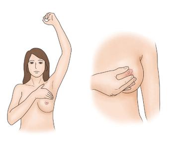 여성이 가슴과 겨드랑이 사이를 만지고 있고(오른쪽),유두를 만지고 있음(왼쪽)