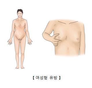 남성의 모습과(오른쪽),여성의 유방처럼된 남성의 가슴