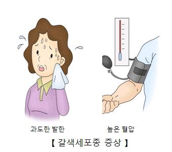 갈색세포종 증상-과도한발한,높은 혈압
