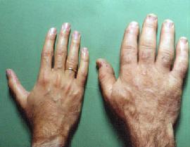 정상적인 손과 말단비대증에 걸린 손의 사진