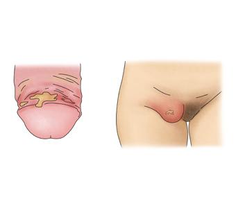 헤모필루스 듀크레이에 감염된 남성의성기와 여성의 외음부
