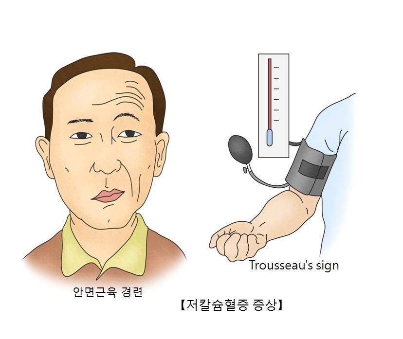 안면근육경련및 Trousseau's sign등 저칼슝혈증 증상의 대한 예시