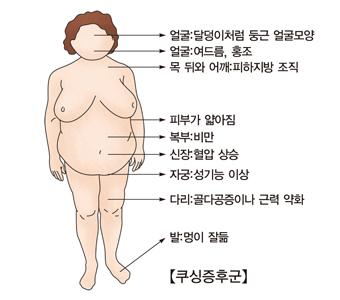 얼굴 달덩이처럼 둥근 얼굴모양 여드름 홍조 목 뒤와 어깨 피하지방 조직 피부가 얇아짐 복부 비만 신장 혈압상승 자궁 성기능 이상 다리 골다공증이나 근력 약화 발 멍이 잘듦등 여성 쿠싱증후군의 예시