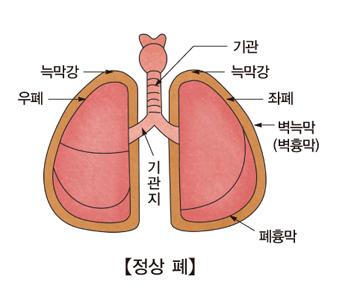 기관 늑막강 좌폐 벽늑막(벽흉만) 폐흉막 기관지 우폐 늑막강을 표시한 정상적인 폐의 모습