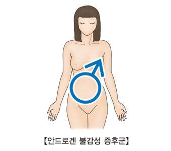 안드로겐 불감성 증후군의 걸린 여성