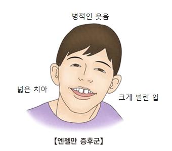 병적인 웃음 넓은치아 크게벌린입등 엔젤만 증후군의 대한 예시