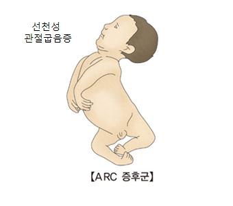 선천성 관절굽음증 ARC증후군의 예시