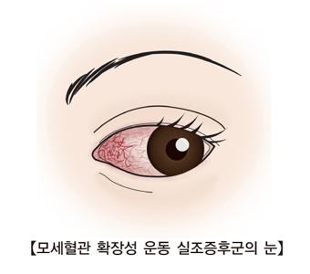 모세혈관 확장성 운동 실조증후군의 눈의 예시
