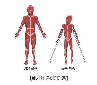 정상근육과및 근육위측등 베커형 근이영양증의 대한 예시