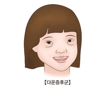 다운증후군에 걸린 여자 아이의 그림 예시