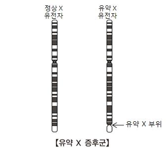 유약X증후군-정상X유전자와 유약X유전자(유약X부위표시) 그림 예시