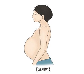 고셔병-비장이 비대해진 아이 그림 예시