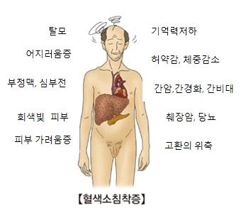 혈색소침착증-탈모,어지러움증,부정맥,심부전,회색빛피부,피부가려움증,고환의위축,췌장암,당뇨,간암,간경화,간비대,허약감,체중감소,기억력저하