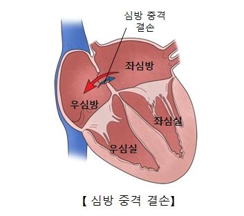 심방중격결손-우심방,좌심방,우심실,좌심실 위치 그림 예시