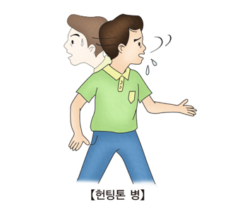 헌팅톤병-안절부절,갈팡질팡 하는 남성