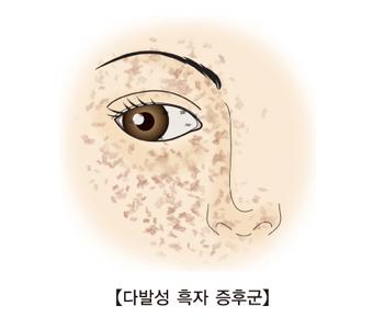 다발성 흑자 증후군 그림 예시