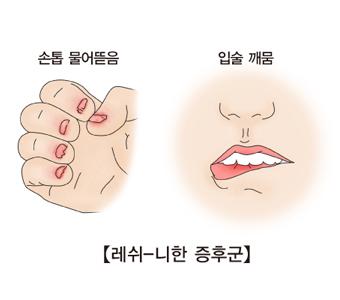 레쉬-니한증후군-손톱물어뜯음,입술깨뭄 그림예시