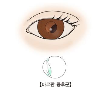 수정체가 이탈된 눈