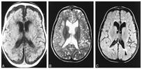 메틸말론산증이 발병된 사람의 MRI 사진