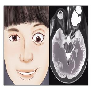왼쪽눈이 안구돌층증이나타난 여자아이(왼쪽),여자아이의 CT사진(오른쪽)