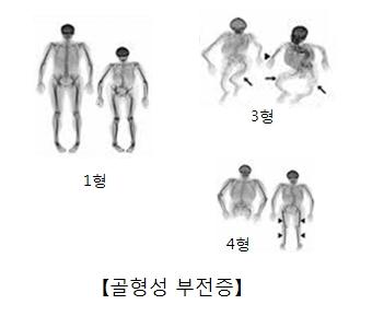 골형성 부전증-1형,3형,4형 그림 예시