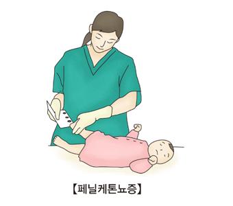 페닐케톤뇨증-신생아의 발뒷꿈치에서 혈액을 채취하고 있는 간호사