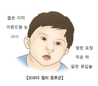 프라더 월리 증후군-좁은이마,아몬드형눈,사시,멍한표정,작은턱,얇은윗입술