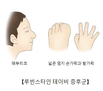 루빈스타인테이비증후군-매부리코,넓은엄지손가락과발가락 그림 예시