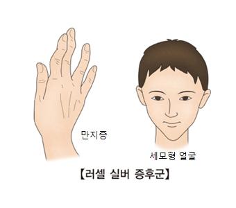 러셀 실버 증후군-만지증과 세모형 얼굴 그림 예시