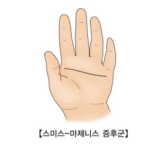 스미스-마제니스 증후군에 걸린 손 그림 예시